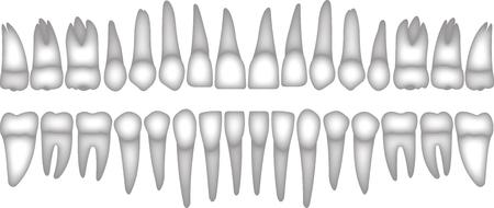 3D denti umani isometrica vettore impostare le icone. Impianto dentale vettore piatto isometrico illustrazione, dente umano isolato su bianco.