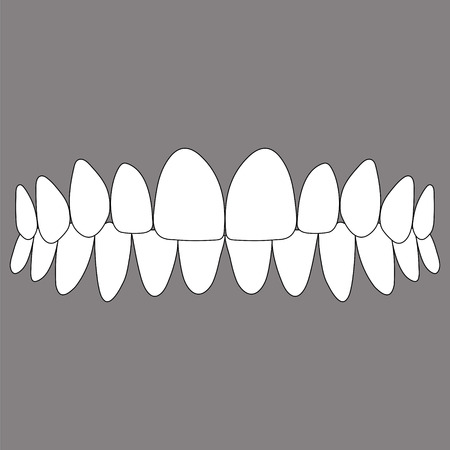 occlusion of the front teeth, correct closure of jaws in the vector