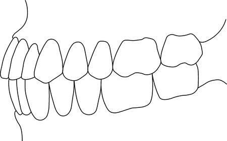 jowl: orthognathic dental occlusion on white background Illustration