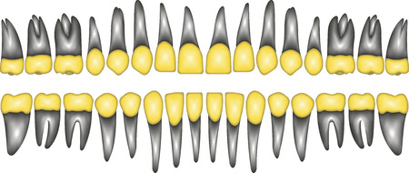3D a number of gold dental crowns with the roots for a dental clinic or lab, vector on white Vettoriali