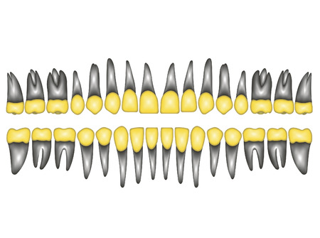 premolar: 3D a number of gold dental crowns with the roots for a dental clinic or lab, vector on white Stock Photo