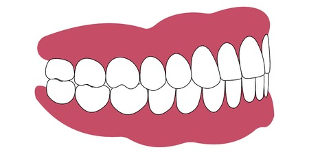 demonstrator: teeth and gums of a human and the bite in occlusion of the teeth and gums of a human, dentures, vector