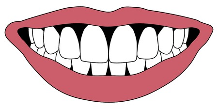 Hollywood sourire avec des dents blanches Lèvres rouges, enfilées dans les dents de l'occlusion, vecteur
