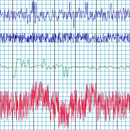 grabación de la pantalla de los gráficos de prueba de polígrafo de un detector de mentiras para determinar la verdad o la mentira, la plantilla de vectores Ilustración de vector