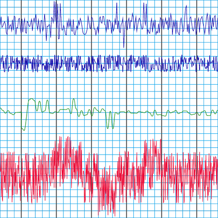 polygraph: screen recording of the polygraph test charts of a lie detector to determine truth or lies , vector template