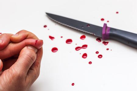 De hand, mes en druppels bloed op een witte ondergrond