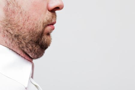 hombre con barba: hombre joven con una papada - el resultado de una mala forma de vida Foto de archivo