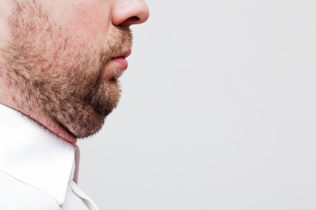 man with beard: young man with a double chin - the result of poor lifestyle