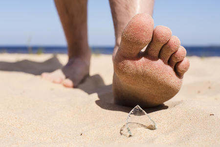 Man goes on the beach and the risk of stepping on a splinter of broken bottle glass, which is lying on the sand littered in places with poor environmental conditions Stock Photo