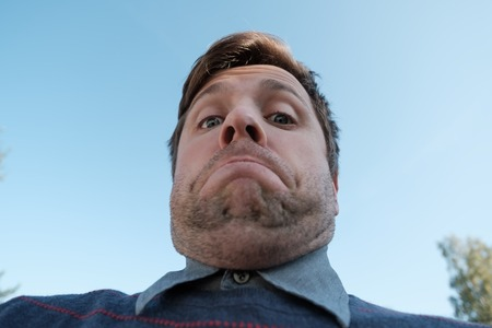 young man with a double chin - the result of poor lifestyle