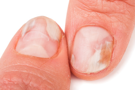 itraconazole: two fingers of the hand with a fungus on the nails isolated on white background.