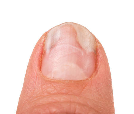 itraconazole: one finger of the hand with a fungus on the nails isolated on white background.
