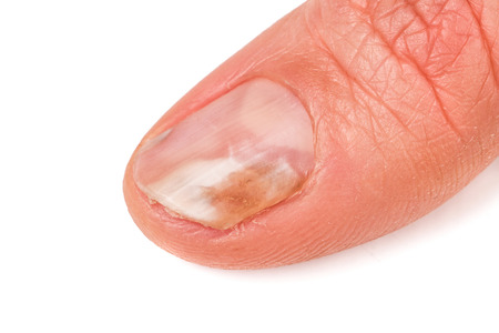een vinger van de hand met een paddestoel op de nagels geïsoleerd op een witte achtergrond.