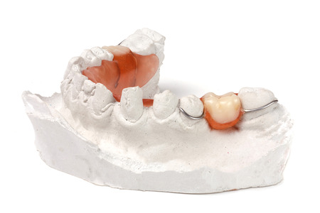 a plaster cast of teeth with removable partial denture isolated on white background. Stock Photo