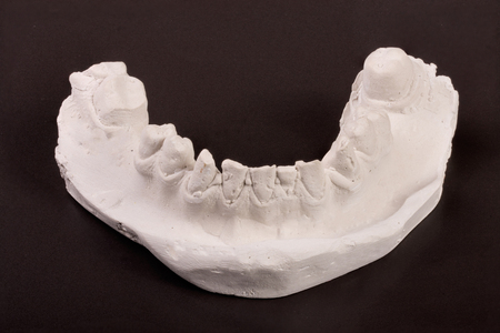 plaster cast of teeth with removable partial denture on a dark background