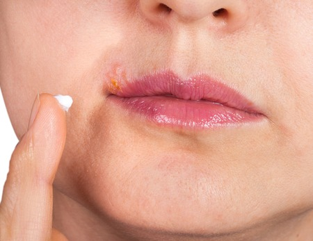 Herpes on the lip close-up macro. Woman lubricates the labial herpes ointment