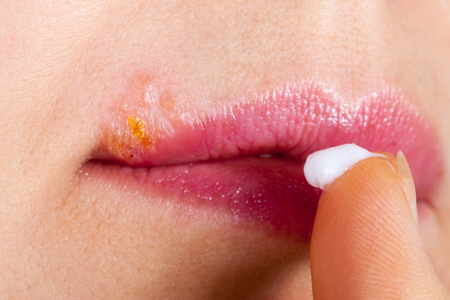 labialis: Herpes on the lip close-up macro. Woman lubricates the labial herpes ointment