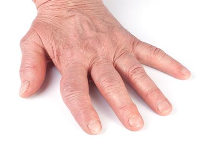 Rheumatoid polyarthritis of hands isolated on white background Stock Photo