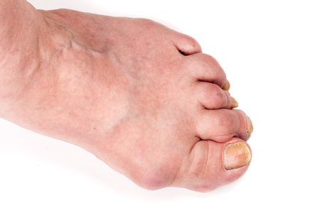 simultaneous: Rheumatoid polyarthritis on foot isolated on white background