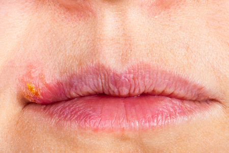 labialis: Herpes on the lip close up macro