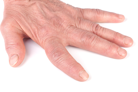 tumor stage: Rheumatoid polyarthritis of hands isolated on white background. Stock Photo