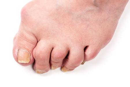 tumor stage: Rheumatoid polyarthritis on foot isolated on white background. Stock Photo