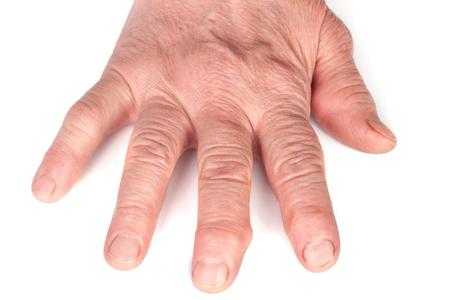Polyarthrite rhumatoïde des mains isolé sur fond blanc Banque d'images - 76701065