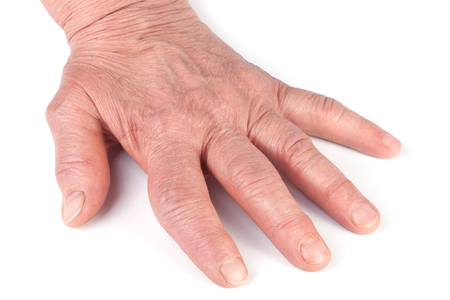 Rheumatoid polyarthritis of hands isolated on white background Stock Photo