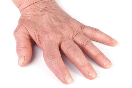 tumor stage: Rheumatoid polyarthritis of hands isolated on white background Stock Photo