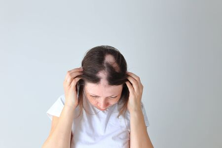 Real alopecia areata in a young girl. A bald head in a person.