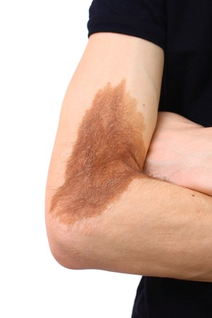melanoma: Problems of the skin on the hand Stock Photo