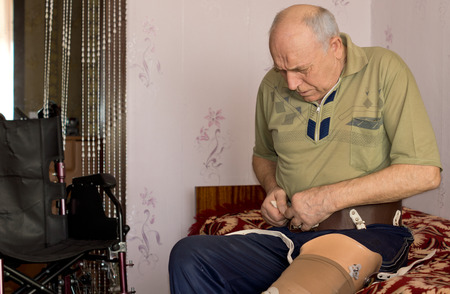 attaching: Elderly man attaching the electronics to control his artificial leg following an above the knee amputation
