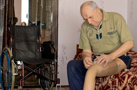 Senior man fitting his prosthetic leg to his stump following an amputation due to an injury or disease as he sits on the edge of his bed at home