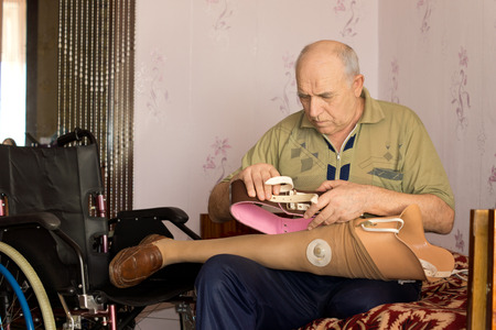 attachments: Pensioner fitting his artificial leg sitting on his bed checking all the attachments on the prosthesis before fitting it to his stump following an above knee amputation