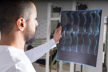 Radiologist studying X-ray image of human spine in consulting room