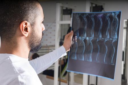 Radiólogo estudiando la imagen de rayos X de la columna vertebral humana en la sala de consulta Foto de archivo