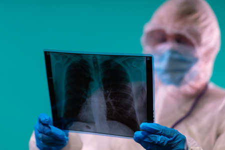 Doctor wearing a PPE suit and mask is looking at X-ray of lungs