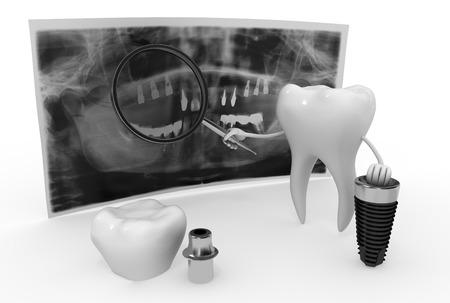 x ray equipment: funny dentistry Stock Photo