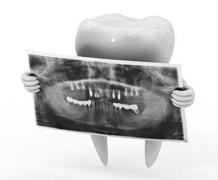 dental implant Standard-Bild