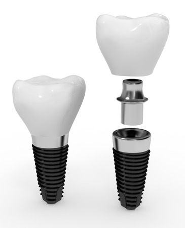 dental implant Stock Photo