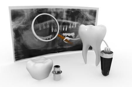 tandheelkundig implantaat Stockfoto