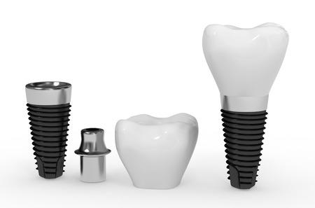 dental research: dental implant Stock Photo