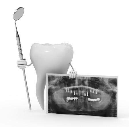 dental implant technology photo