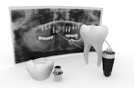 implant: dental implant technology
