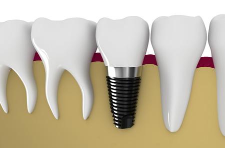 dental research: modern technology of dentistry - dental implant technology Stock Photo