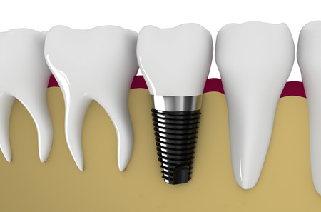 modern technology of dentistry - dental implant technology Stock Photo