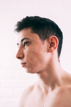 Man with problematic skin and scars from acne