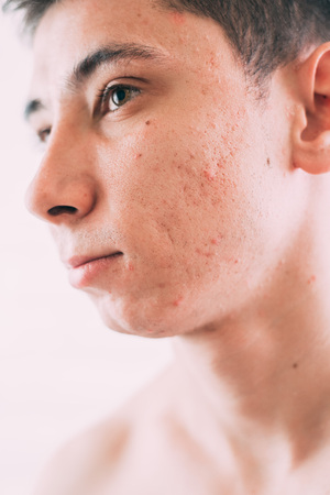 Man with problematic skin and scars from acne Stock Photo - 116427506