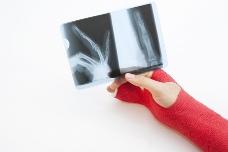 broken arm: Right hand bandaged in red plaster to support the healing process of broken bone. There is loads of copyspace as the backround is white Stock Photo