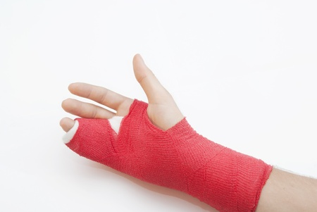 loads: Right hand bandaged in red plaster to support the healing process of broken bone. There is loads of copyspace as the backround is white Stock Photo